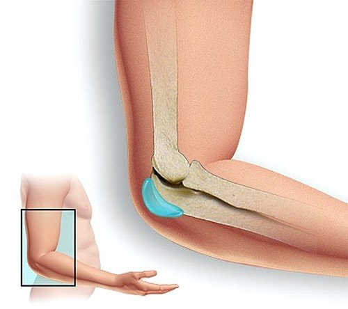 Локтевой бурсит может проявиться вследствие хронического воспаления, которое протекает в хрящевых тканях или синовиальной сумке