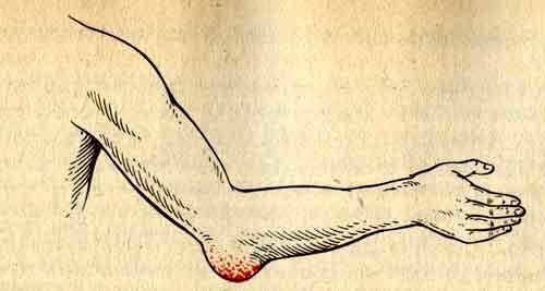 Нагноение локтевого сустава может произойти из-за нарушений в обмене веществ