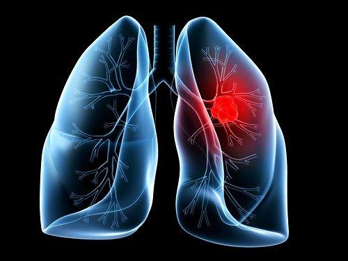 Раковая опухоль негативно влияет на кровообращение, а потому верхняя часть туловища может пострадать от нарушения оттока венозной крови и лимфы