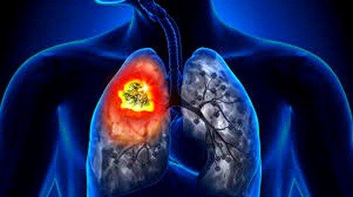 Рак лёгких: симптомы и признаки фото