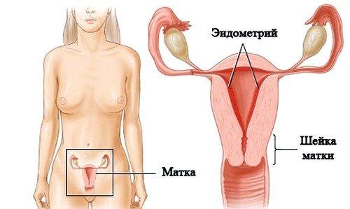 Эндометриоз матки: симптомы фото