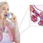 Бронхиальная астма – коварное и опасное заболевание