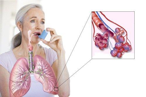 Симптомы бронхиальной астмы встречаются у детей и взрослых