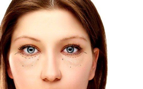Мешки под глазами: причины и лечение фото