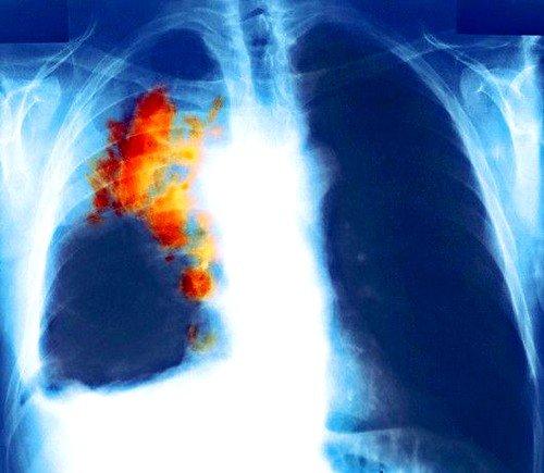 Мелкоклеточный рак лёгкого –системное заболевание, что особенно опасно своими осложнениями, а именно – метастазами