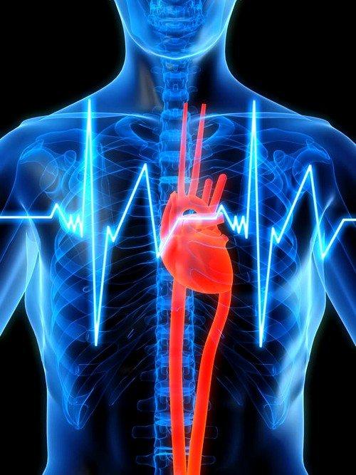 Хроническая сердечная недостаточность фото