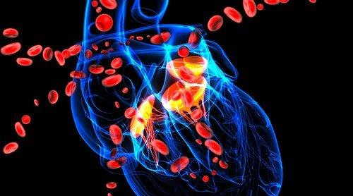 Синдром острой сердечно сосудистой недостаточности