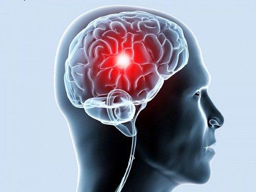 Ишемия сосудов головного мозга у детей и взрослых