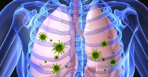воспаление лёгких – острая форма инфекционного воспаления, что располагается в легочных тканях организма