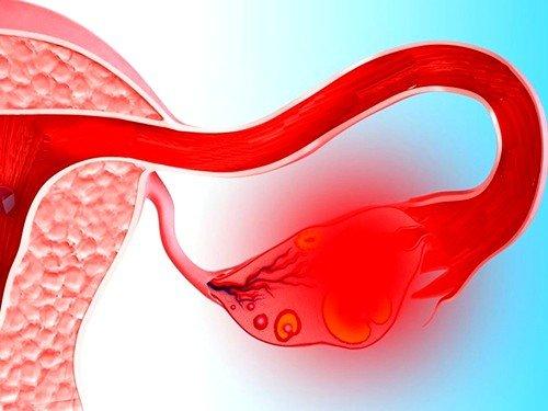 Что такое апоплексия яичника, симптомы и лечение фото