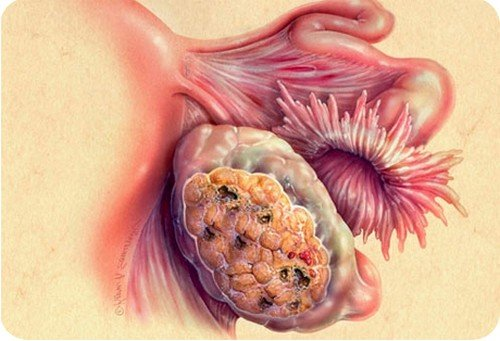 Рак яичников у женщин фото