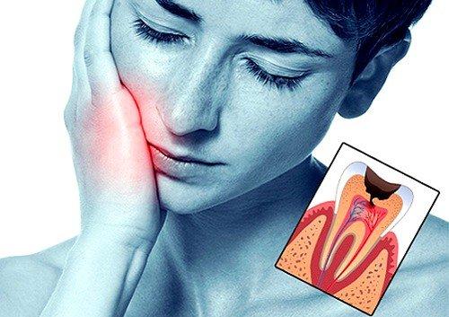 Консервативная терапия – лечение начальных форм пульпита, что сохраняет все свойства зуба, бережно убирая очаги воспаления