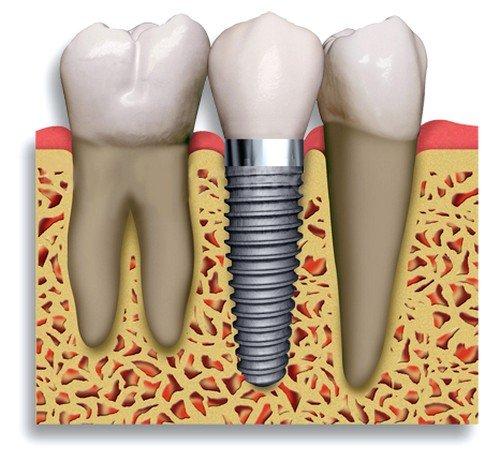 Имплантация зубов: противопоказания и возможные осложнения фото