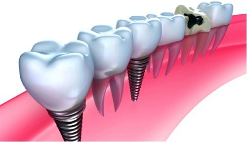Имплантаты зубов имеют высокую прочность, они значительно влияют на качество жизни человека