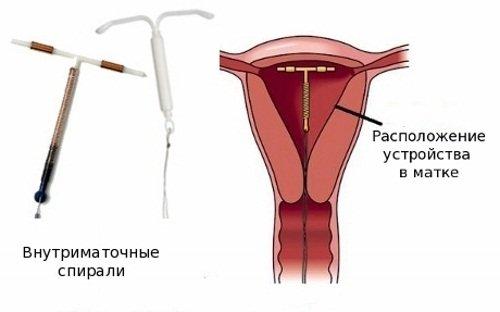 Спираль Мирена внутри полости матки