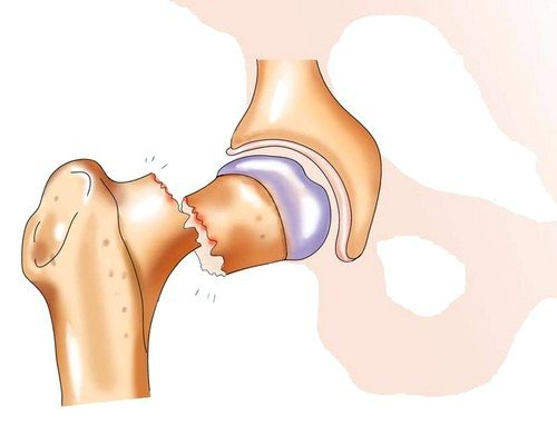 Причиной перелома бедра может являться падение или прямой удар в бедренную часть ноги