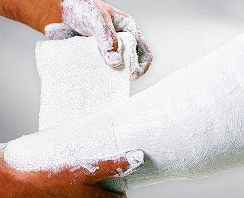 Наложение гипса подразумевает полную неподвижность поврежденных суставов
