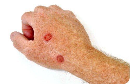 Любая форма течения этой патологии вызвана инфекцией, провоцируемой 8-мым типом вируса герпеса