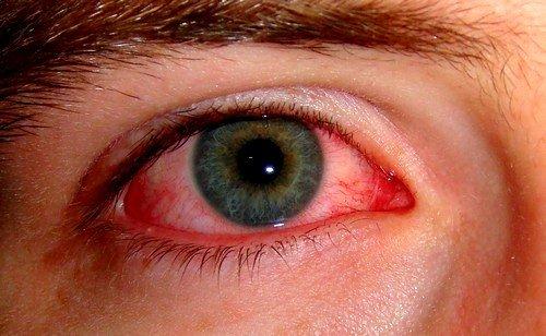 Может развиться синдром Рейтера, при котором сильно повреждаются слизистые глаз, а так же ряд суставов