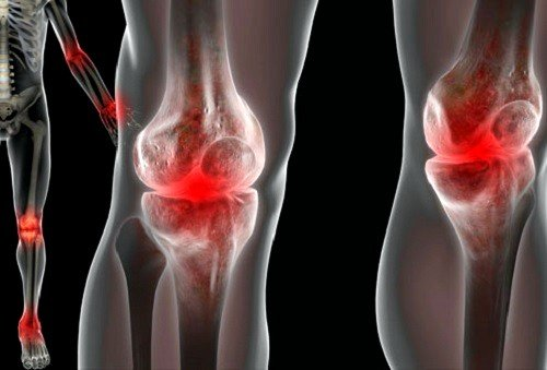 Реактивный артрит: симптомы и лечение фото