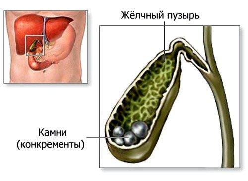 Лучевая болезнь: диагностика, методы лечения фото