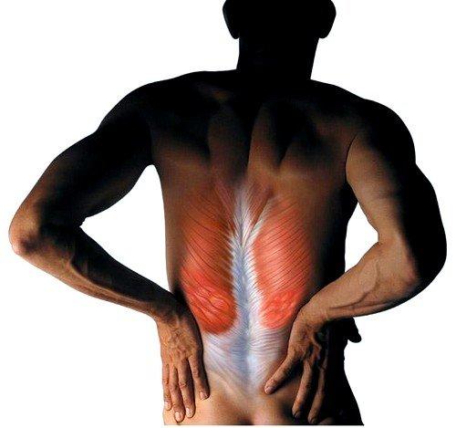 Миорелаксанты для снятия мышечных спазмов фото