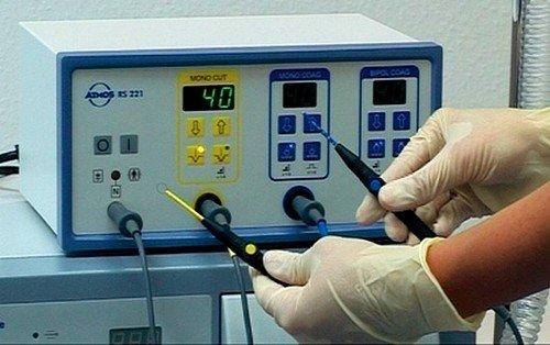 метод электрокоагуляции основан на воздействии электрического тока, который прижигает необходимую для удаления ткань миндалин