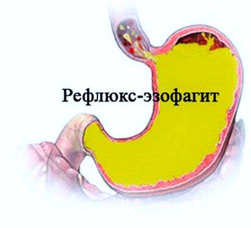 Рефлюкс эзофагит, симптомы и лечение фото