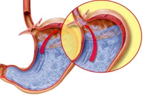 основная причина развития заболевания - нарушение функционирования работы кардии