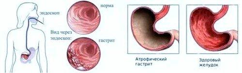 Атрофический гастрит: симптомы, лечение фото