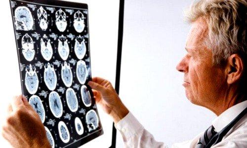 Среди всех недугов, связанных с нервной системой, генерализованная эпилепсия является наиболее распространенной