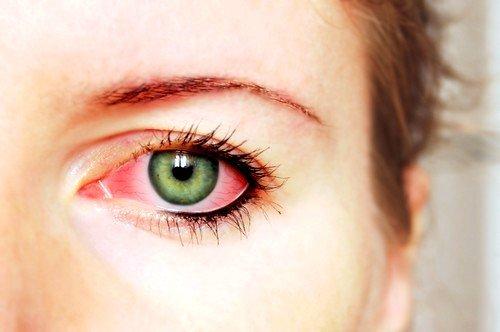 Способы лечения коньюктивита глаз фото