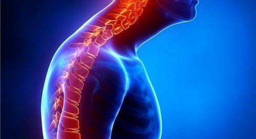 Кифоз грудного отдела позвоночника может развиваться на фоне травм позвоночного столба