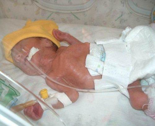 Новорожденный малыш на 33 неделе беременности