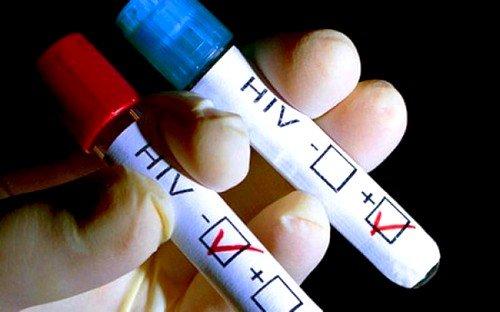 Саркома Капоши эпидемического типа является главным признаком наличия ВИЧ-инфекции