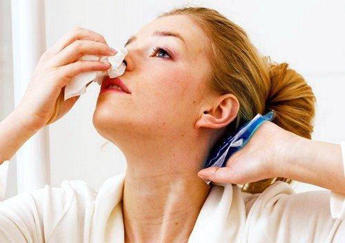 Кровь из носа: причины фото