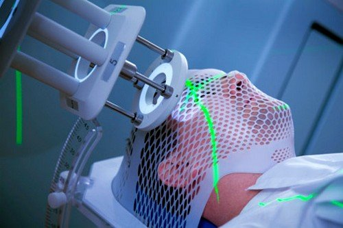 По способу подачи луча на пораженные ткани различается поверхностное (дистанционное) и внутритканевое (контактное) воздействие