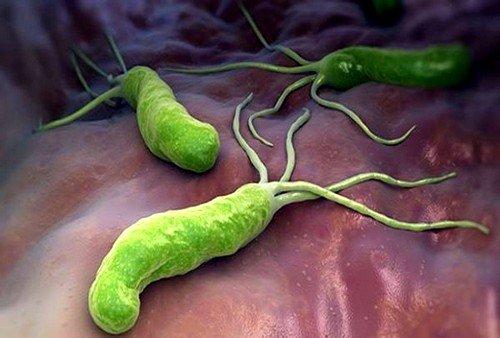 Кишечный грипп или гастроэнтерит развивается на фоне вирусов, которые повреждают клетки тонкой кишки
