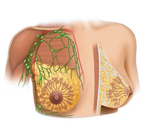 Специалисты считают, что одной из первопричин развития кисты в молочных железах может быть сложное психоэмоциональное состояние
