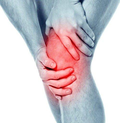 Гонартроз коленного сустава фото