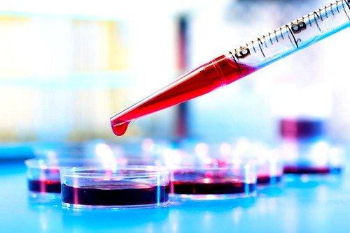 назначается лабораторный анализ крови для выявления антител к Helicobacter Pylori