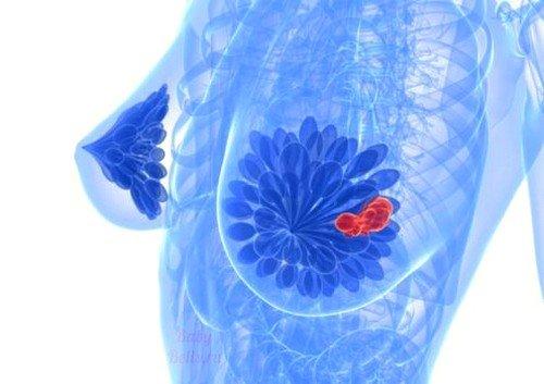 Симптомы и лечение кисты молочной железы фото