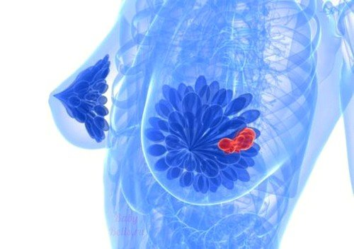 Маммография молочной железы фото
