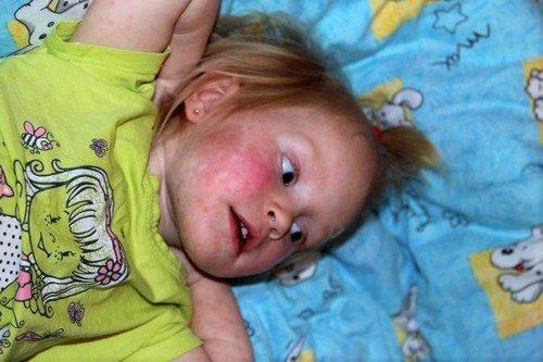 характерный симптом - высыпания по телу больного, которые не всегда имеют стандартный вид