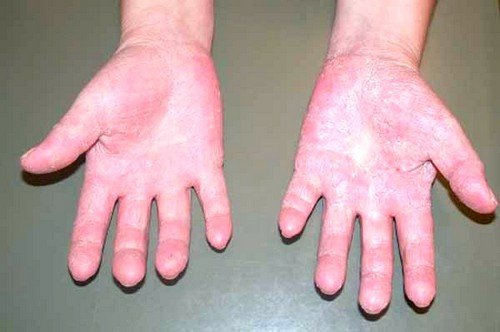 Симптомы и способы лечения аллергии на холод фото