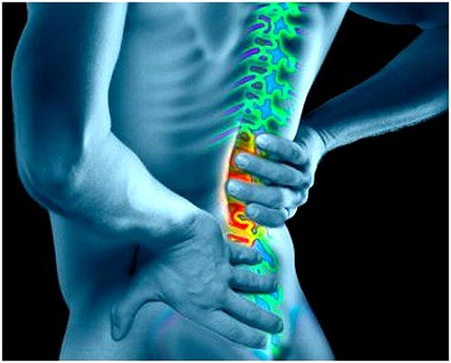 Симптомы защемления нерва в пояснице и лечение фото