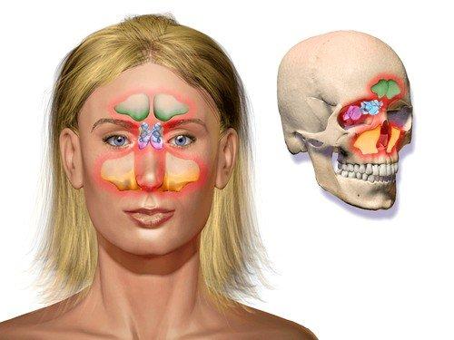 Если кисту больших размеров, расположенную в носовых пазухах, не вылечить вовремя, это может привести к хроническому воспалению носа