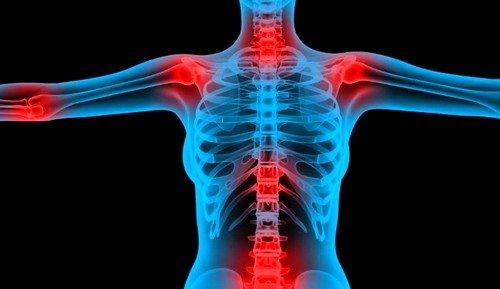 Хронические заболевания опорно-двигательного аппарата могут быть причиной симфизита