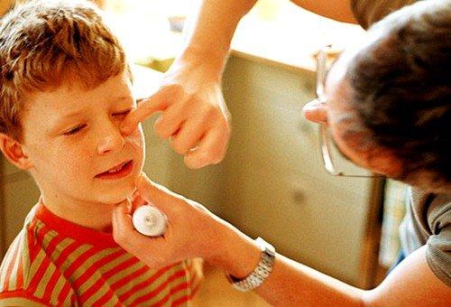 Какая мазь от аллергии наиболее эффективная? фото