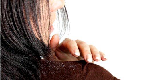 Нарушения в организме метаболического характера могут быть причиной перхоти